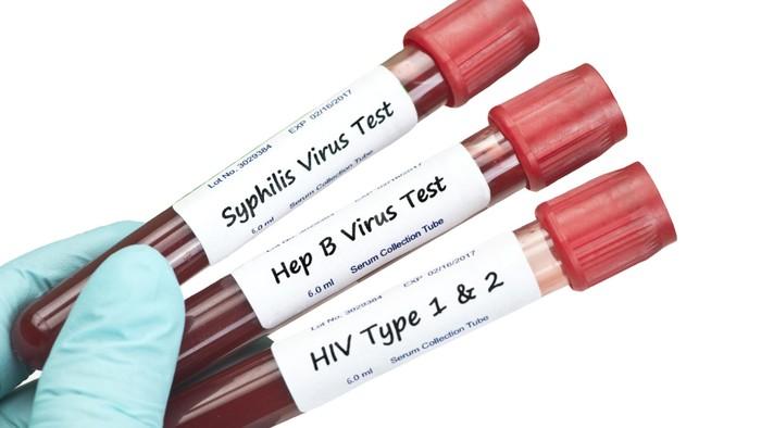 DIPERKIRAKAN ADA KEMAJUAN VAKSIN CORONA KANKER DAN HIV - (Ada 2 foto)